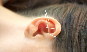 An Acupuncture Treatment And An Initial Consultation At Acupuncture Lifestyles Of Madison (70% Off)