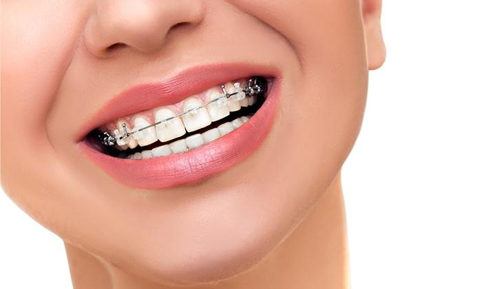 DentalMed - Dentalmed J. Tomaszewska-Michalska: Aparat stały metalowy (499 zł) lub samoligaturujący (899 zł) w DentalMed