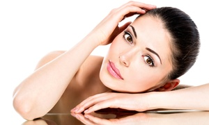 Butterfly Medical Spa: $169 for 20 Units of Botox at Butterfly Medical Spa ($300 Value)
