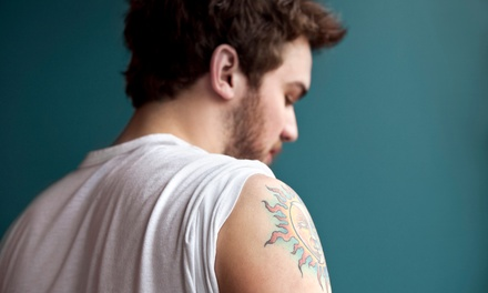 Laser Tattoo Removal for a Three-, Five-, or Eight-Square-Inch Area at Beauty Skin Laser (Up to 92% Off)
