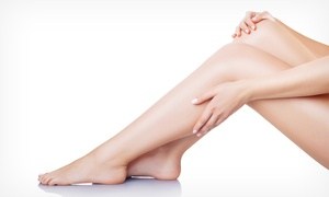 Lotus Laser & Spa: Six Laser Hair-Removal Treatments on a Small, Medium, or Large Area at Lotus Laser & Spa (Up to 74% Off)