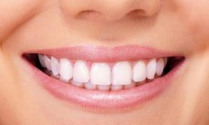 White & Beauty: Laserowe wybielanie zębów od 99 zł w White & Beauty
