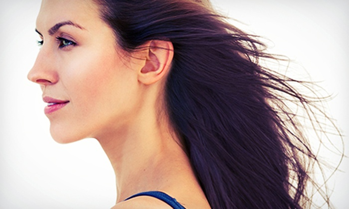 Aesthetic & Plastic Surgery, Inc. - Polaris: One or Two Microdermabrasion Treatments at Aesthetic & Plastic Surgery, Inc. (Up to 64% Off)