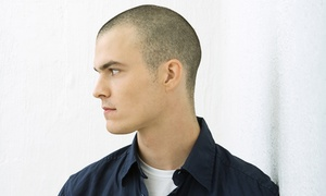 Semper Hair: $405 for $900 Worth of Scar Removal - Scalp Micro-Pigmentation — Semper Hair
