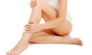 NYC Surgical Associates: Spider-Vein Treatment on Two, Four, or Six Areas at NYC Surgical Associates (Up to 86% Off)
