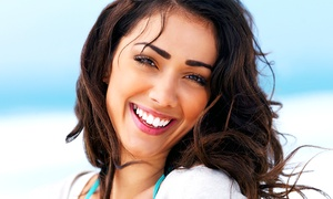 Imperial Smile Beauty Ltd.: One or Two Teeth Whitening Sessions for One or Two People at Imperial Smile (Up to 85% Off)