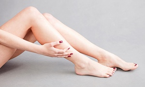 Miracle Laser & Skin Care Institute: Two, Four, or Six Laser Spider-Vein-Removal Treatments at Miracle Laser & Skin Care Institute (Up to 92% Off)