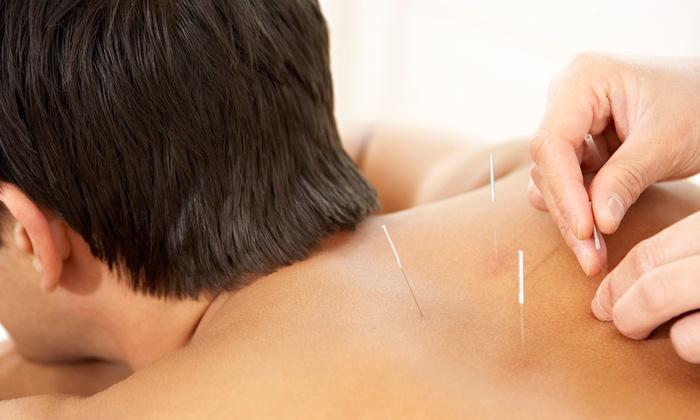 Hayley Mermelstein - Amherst: $39 for Acupuncture Treatment with Shiatsu Massage from Hayley Mermelstein ($80 Value)