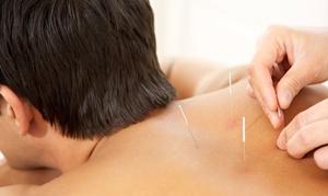 Hayley Mermelstein: $39 for Acupuncture Treatment with Shiatsu Massage from Hayley Mermelstein ($80 Value)