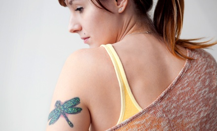 Laser Tattoo Removal on a Small, Medium, or Large Area at Renaissance Center for Cosmetic Renewal (Up to 75% Off)