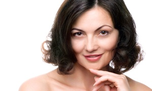 Allure Beauty Lounge: Four, Six, or Eight Microdermabrasions at Allure Beauty Lounge (Up to 83% Off)