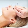 Up to 76% Off at TigerLily Acupuncture