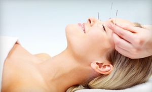 TigerLily Acupuncture: One or Two 60-Minute Acupuncture Sessions at TigerLily Acupuncture (Up to 76% Off)