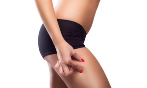 Body Sculpt: Laser Lipolysis: Three, Six or Nine Sessions from £35 at Body Sculpt (Up to 89% Off)
