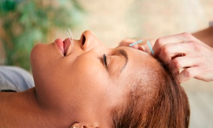 Pacific Acupuncture - Jessica Devlahovich: Acupuncture Treatments at Pacific Acupuncture - Jessica Devlahovich (Up to 50% Off). Three Options Available.