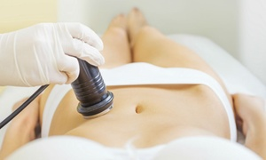 A Fine Line Sculpting: Two, Four, or Six Ultrasonic Fat Cavitations at A Fine Line Sculpting (Up to 87% Off)