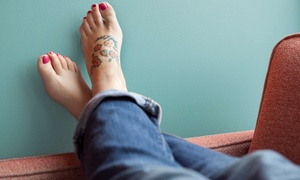 Vanishing Ink, M.D.: One Laser Tattoo Removal Treatment for a Small, Medium, or Large Area at Vanishing Ink, M.D. (Up to 60% Off)