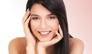 NoVa Medical Skin Care: Two IPL Photofacials for a Small, Medium, or Large Area at NoVa Medical Skin Care (Up to 68% Off)