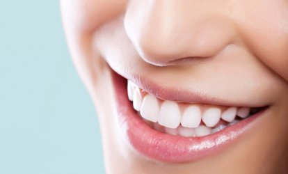 image for Teeth Whitening: 20-Minute Top-Up or One-Hour Full Treatment from The White House