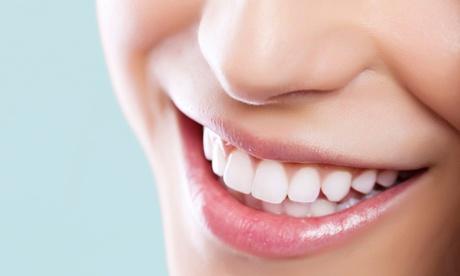 Limpieza bucal con opción a blanqueamiento dental led para 1 o 2 personas desde 9,95 € en Mauramed