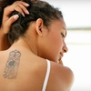 Up to 62% Off Laser Tattoo Removal