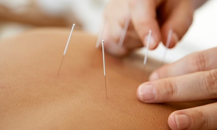 De-Stress and Weight-Loss Acupuncture Treatments (Up to 72% Off)