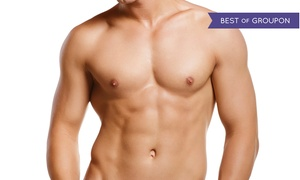 Beverly Hills Institute of Plastic Surgery: $3,500 for Male Breast-Reduction (Gynecomastia) Surgery at Beverly Hills Institute of Plastic Surgery ($6,500 Value)
