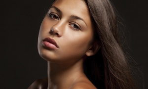 Advanced Laser Solutions: $169 for 20 Units of Botox at Advanced Laser Solutions ($240 Value)