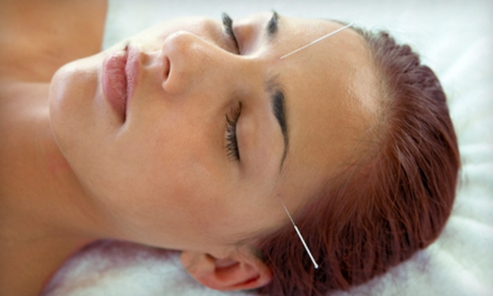 Harmony Health Care Clinic - Ocala: $29 for Two Acupuncture Treatments at Harmony Health Care Clinic ($160 Value)