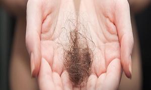 Hair Loss Center of Atlanta: $74 for $185 Worth of Hair Restoration — Hair Loss Center of Atlanta