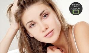 Clínica Gabriela Queiroga: Clínica Gabriela Queiroga – Guará I: 1, 2 ou 5 visitas com tratamento de acne com luz pulsada e máscara finalizadora