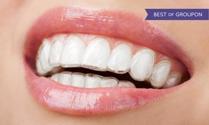 Infinite Dental Wellness: $600 for $3,000 Off of a Full Invisalign Treatment at Infinite Dental Wellness