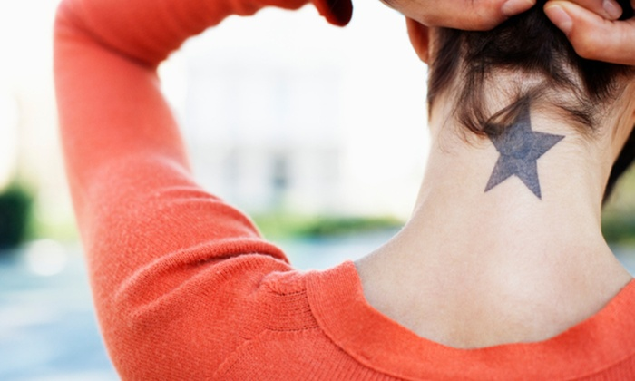 Cosmetic and Vascular Suite - New York: One Year of Laser Tattoo-Removal Sessions at Cosmetic & Vascular Suite NYC (Up to 72% Off)