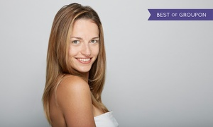 Total Med Solutions - Allen: $163 for 20 Units of Botox at Total Med Solutions Allen ($460 Value)