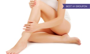 NYC Surgical Associates: Spider-Vein Treatment on Two, Four, or Six Areas at NYC Surgical Associates (Up to 85% Off)