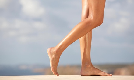 A Non-Invasive Cosmetic Spider Vein Removal Treatment at Radiance Aesthetics MD (66% Off)