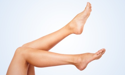 20- or 40-Minute Laser Spider Vein Treatment at MCC Laser & Skin Care (Up to 73% Off)