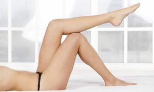 iPure Med Spa: One, Two, Three, or Four Sclerotherapy Treatments at iPure Med Spa (Up to 74% Off)