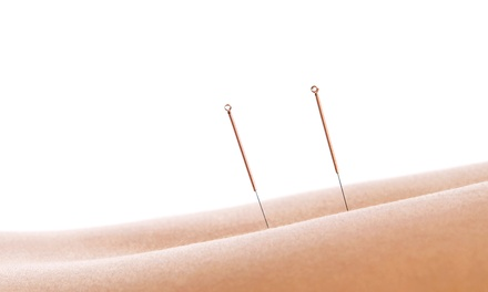 One or Three Acupuncture Treatments with Consultation at Urban Acupuncture Center (Up to 62% Off)
