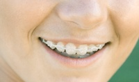 Short-Term Clear Tooth-Coloured Braces for One or Two Arches at Dental Practice Manor Square (Up to 56% Off)