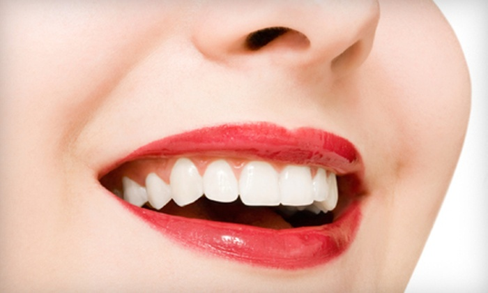 Moe Yazdi, DDS - Multiple Locations: $2,799 for a Complete Invisalign Treatment from Moe Yazdi, DDS ($6,150 Value)