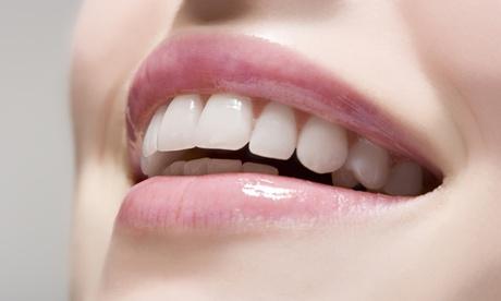 Limpieza bucal completa con opción a una o dos sesiones de blanqueamiento dental led desde 12,95 € en 4Dental