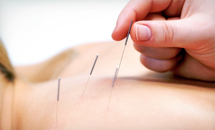 C$29 for a Consultation and 60-Minute Acupuncture Session at China Traditional Chinese Medicine Center (C$105 Value)