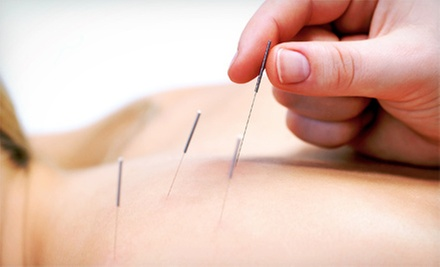 $29 for a Consultation and 60-Minute Acupuncture S...