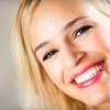 63% Off Teeth-Whitening Treatment