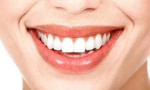 Limpieza bucal por 12,90 €, con 1, 2 o 4 empastes desde 19,90 € y con blanqueamiento dental led desde 69,90 €
