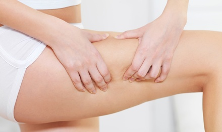 One, Four, or Six Cellulite-Reduction Treatments at Anti Aging Med Spa (Up to 73% Off)