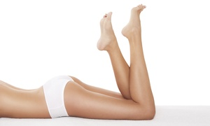 Dynamix Body Solutions Studio: One, Three, or Five Z-Wave Cellulite Reduction Treatments at Dynamix Body Solutions Studio (Up to 56% Off)