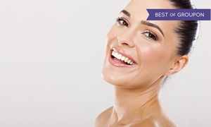 Second Street Medical Spa: One, Two, or Three IPL Photofacials with Microdermabrasions at Second Street Medical Spa (Up to 78% Off)