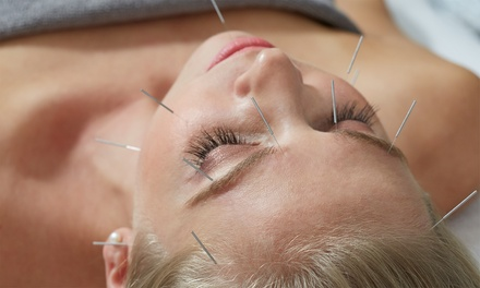 1 or 3 Therapeutic Acupuncture Sessions or 1 Cosmetic Acupuncture Session at Pure Health Centre (Up to 64% Off)